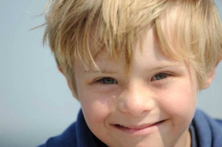 niño rubio síndrome down upsocl